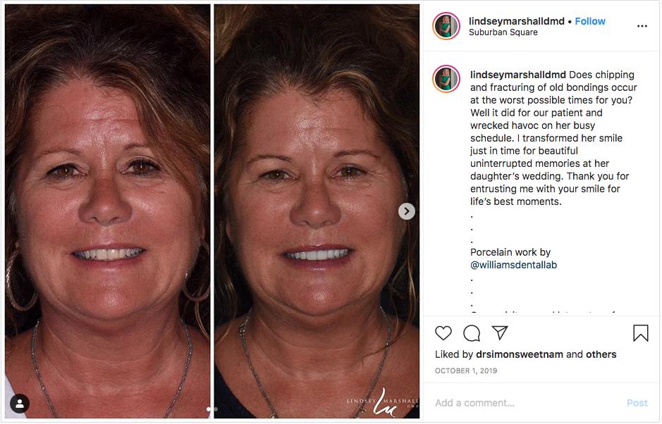Before & After Dental Instagram Photos